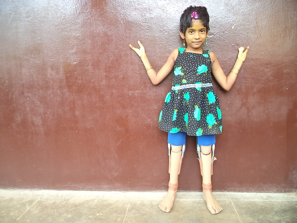 Beulah prosthetic legs disabled children special needs school Tamil Nadu India